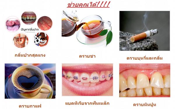 น้ำยาบ้วนปาก pantip